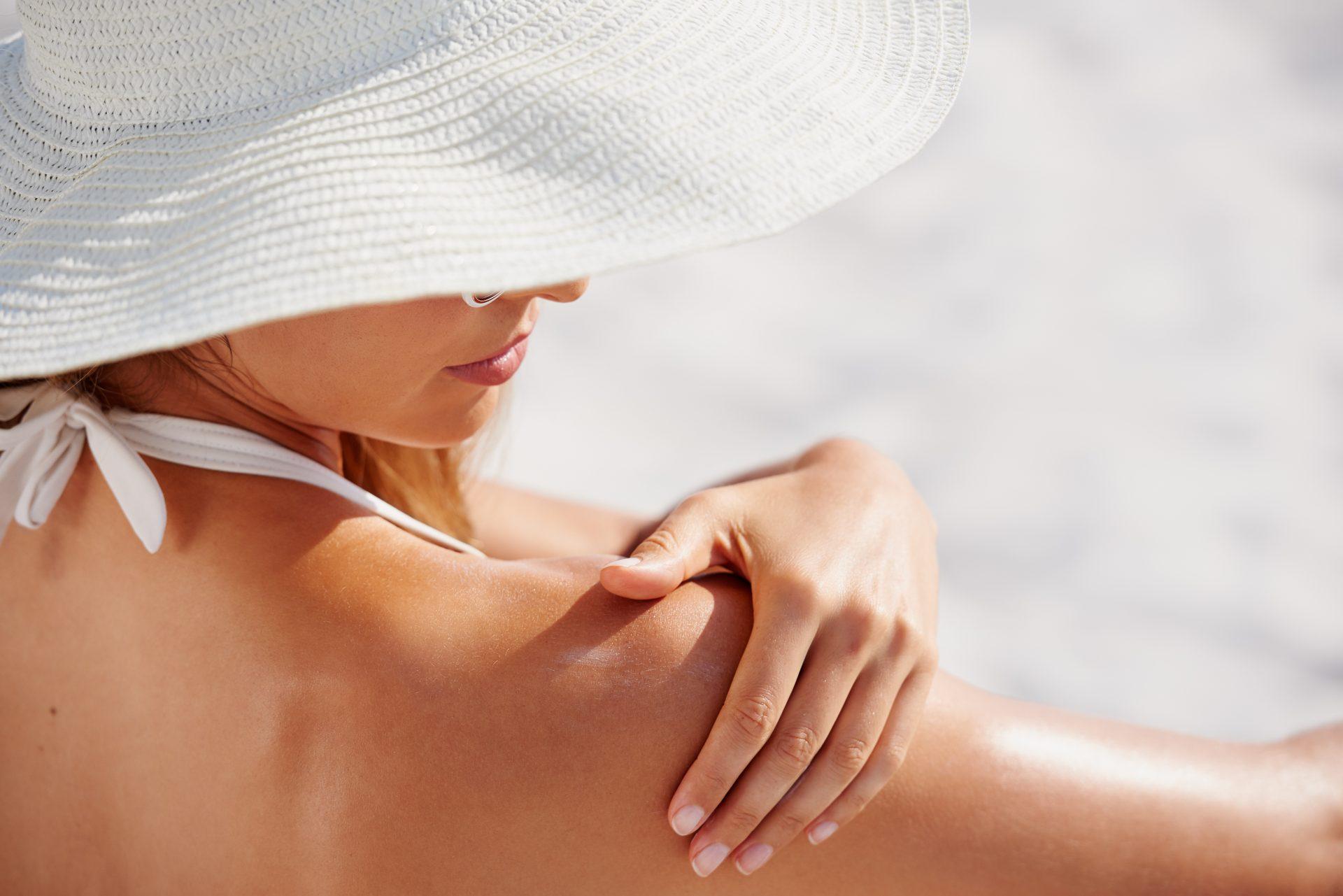 Die sogenannte Mallorca Akne ist eine fiese Reaktion der Haut